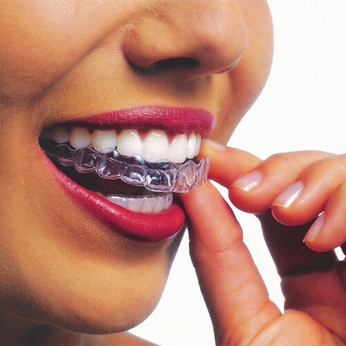 Female patient inserting Invisalign trays
