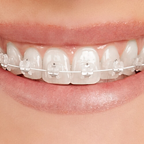 Teeth Empower clear braces